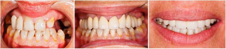 Zähne vor und nach Behandlung Stockfoto