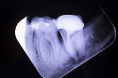 Ząb korony korzeniowy kanał Fotografia Royalty Free