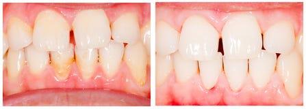 Zębów bieleć Fotografia Royalty Free