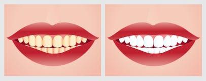 Zębów bieleć Zdjęcie Royalty Free