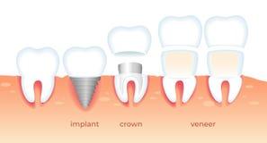 Zębów problemy Chory ząb w dziąśle Stomatology ilustracja wektor