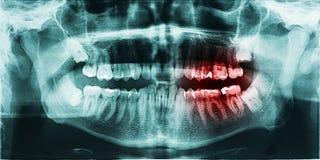 Zębu ból Na promieniowaniu rentgenowskim Obraz Stock
