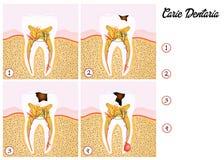 Zębu gnicie ilustracji