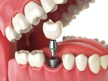 Zębu ludzki wszczep target407_0_ pojęcia stomatologiczny dzieciaka zębów wektor Ludzcy zęby lub dentures Obrazy Stock