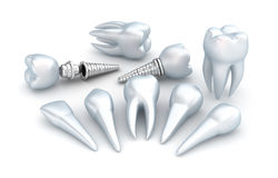 Zęby i wszczep, Stomatologiczny pojęcie Zdjęcie Stock