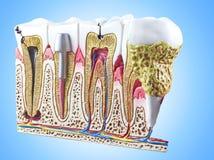 Zęby, stomatologiczny sekcja model obrazy stock