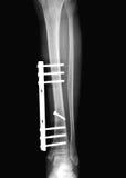 złamana noga promień x Zdjęcie Royalty Free