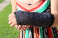 złamana ręka zdjęcie stock