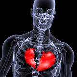 złamane serce 1 promieni x. Zdjęcie Royalty Free