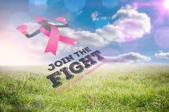 Złożony wizerunek nowotwór piersi świadomości wiadomość Obrazy Royalty Free