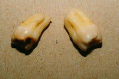 Ząb Po ekstrakci Obraz Stock