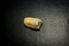 Ząb Po ekstrakci Fotografia Stock