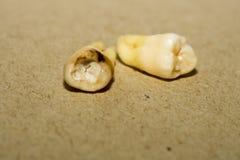 Ząb Po ekstrakci Zdjęcia Royalty Free
