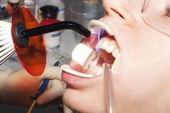 Zęby bieleje traktowanie Zdjęcia Stock
