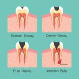Zębu gnicie Fotografia Royalty Free