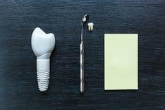 Zębu prosthesis Zdjęcie Royalty Free