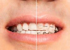 Zęby z i bez stomatologicznych brasów folowali usta Zdjęcia Stock