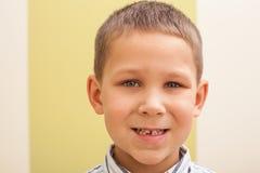 zagubiony pierwszy ząb Obraz Royalty Free