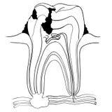 Zahn brach und Kariesanatomie, medizinischer Konzeptvektor Illustra vektor abbildung
