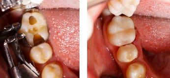 Zahn, der durch Zahnarzt füllt Stockfotos
