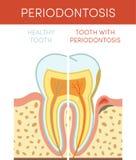 Zahn mit periodontosis Stockbilder