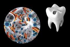 Zahn mit zahnmedizinischer Karies lizenzfreie abbildung