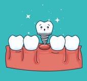 Zahn ptosthesis Behandlung mit Medizinbehandlung stock abbildung
