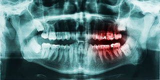 Zahn-Schmerz auf Röntgenstrahl Stockbild