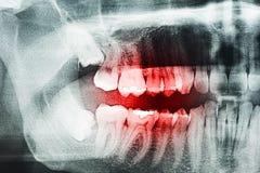 Zahn-Schmerz auf Röntgenstrahl Lizenzfreie Stockfotos
