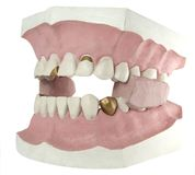 Zahn trennte 2 Stockfoto