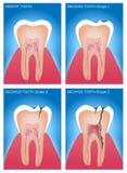 Zahn und Gummianatomie und -schaden Stockfotografie