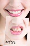 Zahn werden Konzept weiß Stockfoto