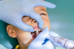 Zahnarzt behandelt die Z?hne eines Jungen Die Z?hne des Untersuchungsjungen des Zahnarztes in der Klinik Ein kleiner Patient im z lizenzfreie stockbilder
