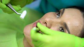 Zahnarzt, der Baumwollrolle nahe krankem Zahn, Isolierung vom Speichel, Abschluss darlegt stock footage