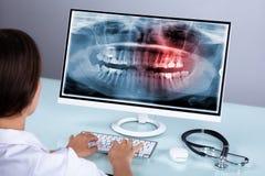 Zahnarzt-Looking At Teeth-R?ntgenstrahl auf Computer lizenzfreie stockfotografie
