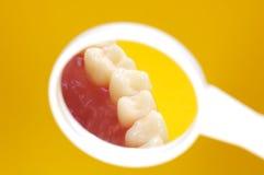 Zahnarzt-Spiegel lizenzfreies stockbild