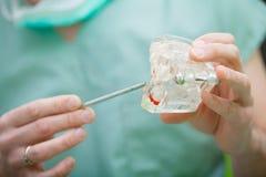 Zahnarzthandholding des Kiefermodells der Zähne und der Reinigung zahnmedizinisch mit zahnmedizinischem Werkzeug lizenzfreies stockfoto