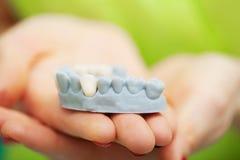 Zahnarzthandholding des Kiefermodells der Zähne und der Reinigung zahnmedizinisch mit zahnmedizinischem Werkzeug Technische Schüs stockfotos