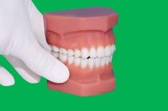 Zahnarzthandshowmodell von Zähnen stockbilder