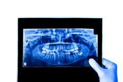 Zahnarztholding u. voller Röntgenstrahl Mund der Betrachtung Stockbilder