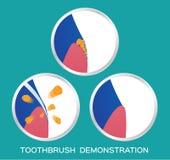 Zahnbürsten- und Zahndemonstration Lizenzfreies Stockbild