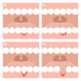Zahnfleischentzündungs- oder Periodontitis-Illustration Stock Abbildung
