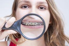 Zahngesundheits-und Hygiene-Konzepte Kaukasische Frau, die ihre Zähne demonstriert Lizenzfreie Stockbilder