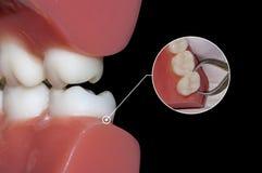 Zahnheilkundechirurgie-Extraktionszahn Stockfotos