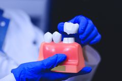 Zahnimplantat in den Händen wirklichen Doktors - Modell von Zähnen stockbilder