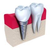 Zahnimplantat - eingepflanzt im Kieferknochen lizenzfreie abbildung