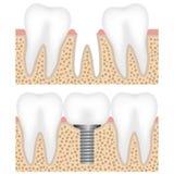 Zahnimplantat mit Krone Stockbilder