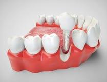 Zahnimplantat - Wiedergabe 3d Stockfotografie