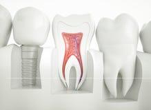 Zahnimplantat - Wiedergabe 3d lizenzfreie stockbilder