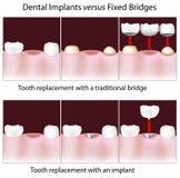 Zahnimplantate gegen örtlich festgelegte Brücken Stockfotos